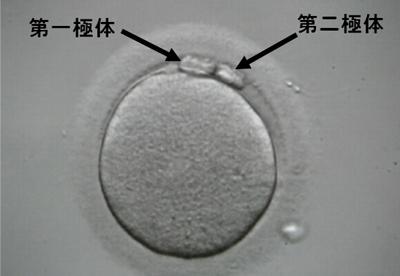 成熟卵の写真